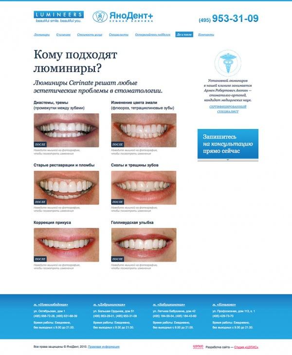 накладки на зубы люминиры
